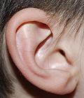 Ouvido - 1